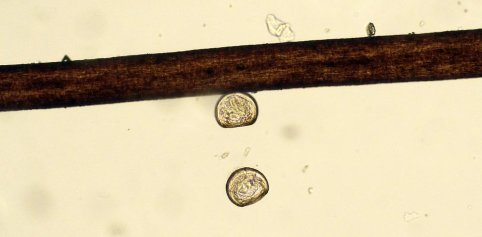 Two day old oyster larvae next to a human hair for scale. These larvae have already built their first shell and are just beginning their month-long journey of growing and finding a place to settle down. The faster they can get there, the better their chances may be.